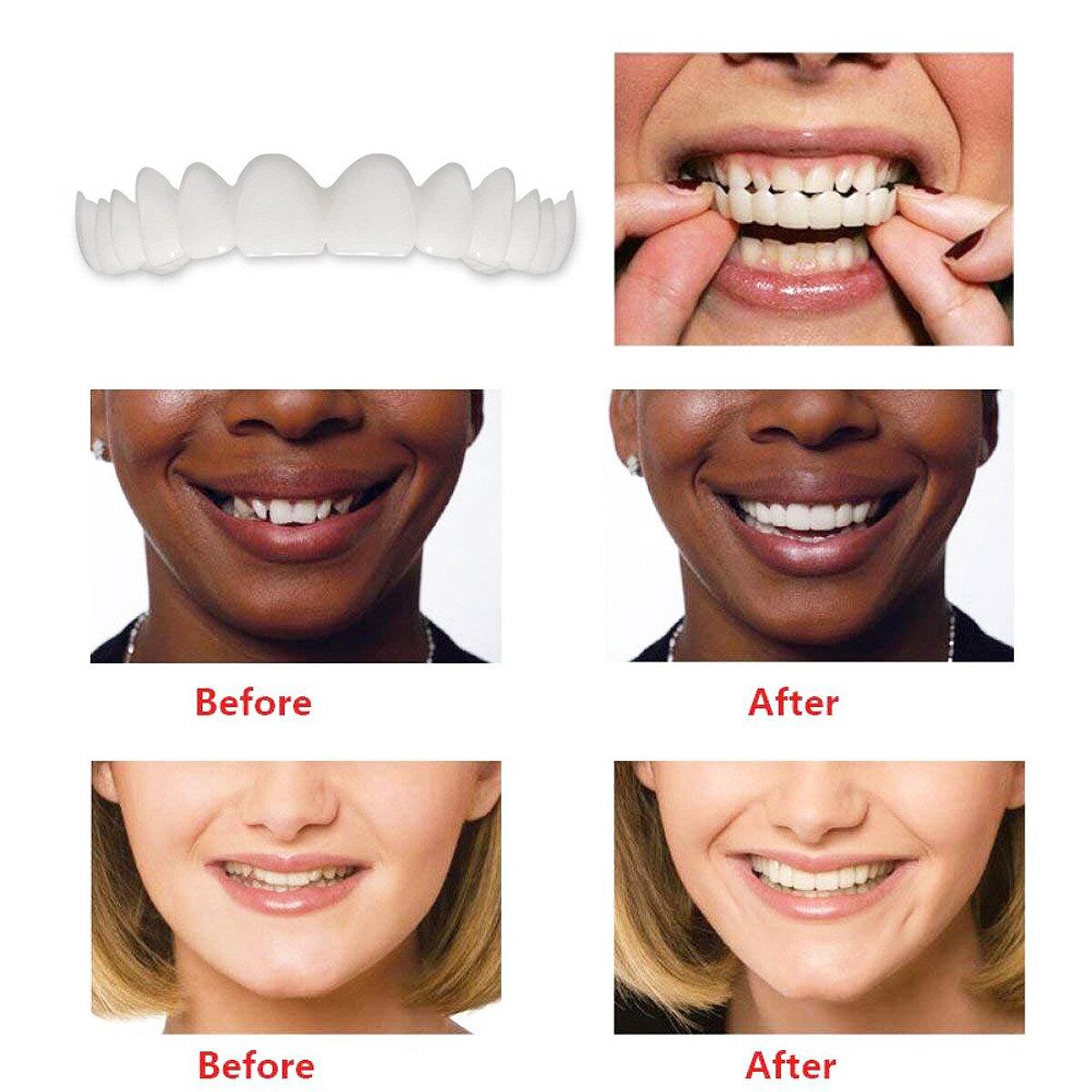 Natural False Tooth Kit Smile Comfort VeneersTeeth Braces Upper +Bottom Dentistry Cosmetic