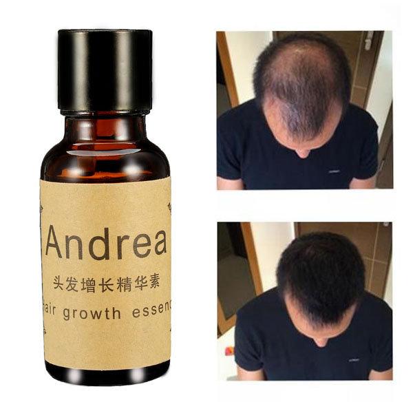 Fast Hair Growth Essence Liquid Treament Original Authentic 100% Hair Loss Essential Oil 20ml