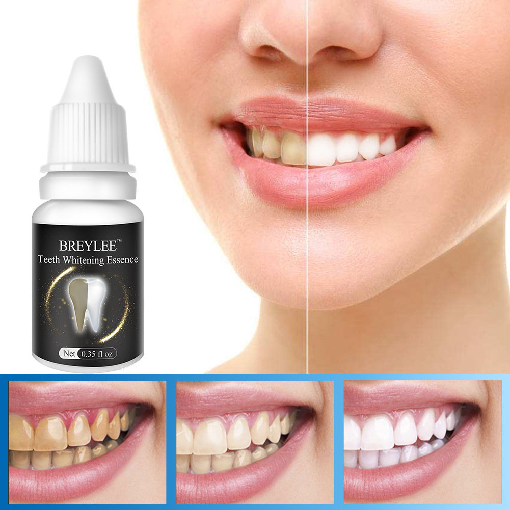 10 ml Teeth Whitening Solution Remove Black Tooth Yellow Tooth Tooth Tobacco Tea Stains Teeth Care