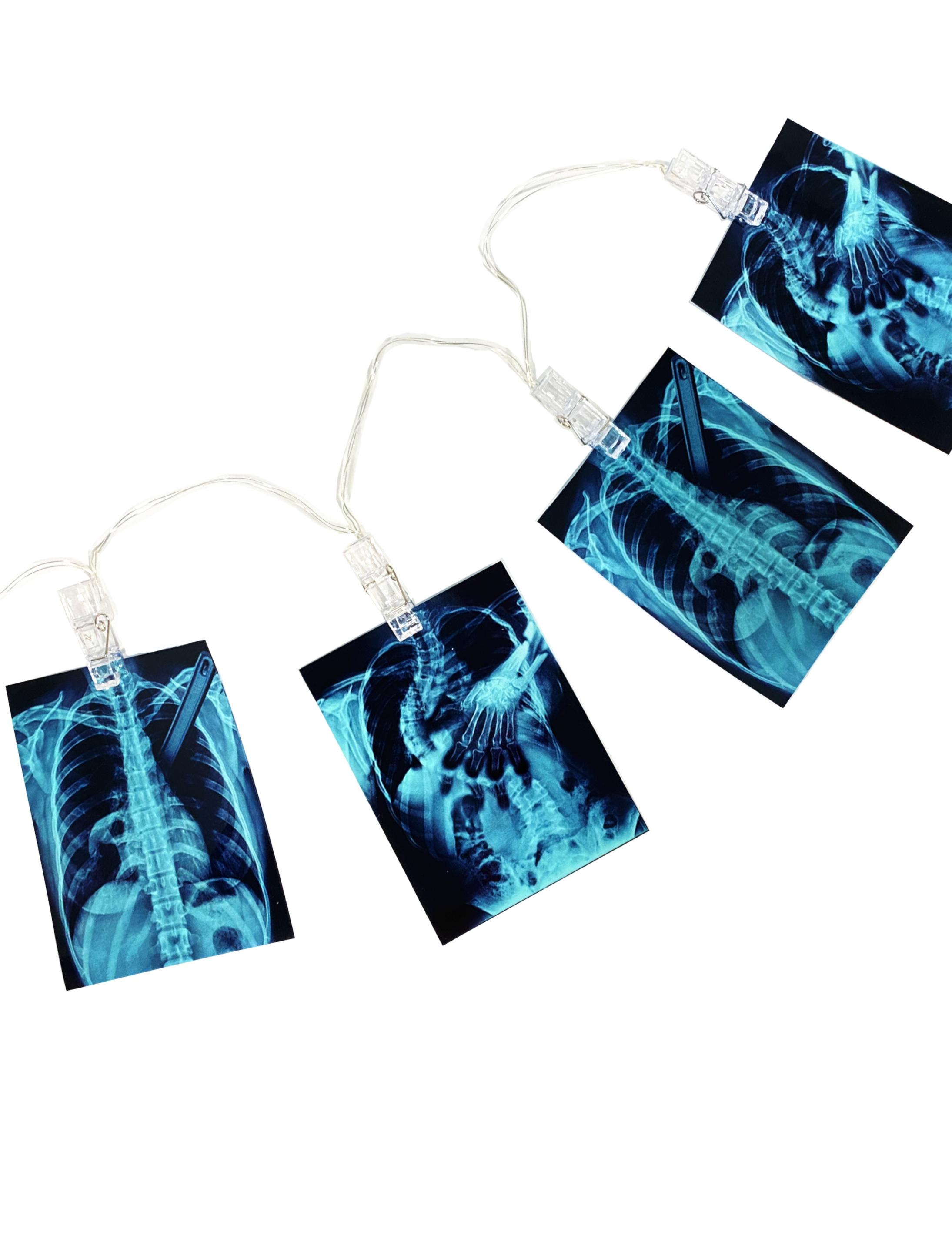 LED Girlande Rontgenbilder mit Skeletten Farbe: schwarz/weiss